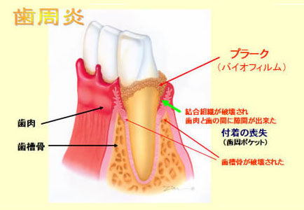 歯周炎の図解