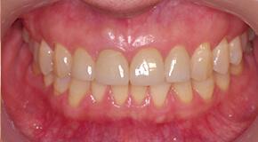 オールセラミック修復前歯 術後