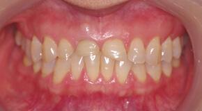 オールセラミック修復前歯 術前