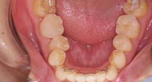 オールセラミック修復奥歯 術後