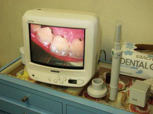 口腔内撮影用小型CCDカメラ