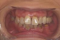 歯周外科術前
