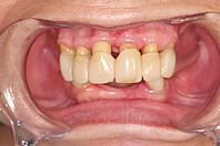 歯周外科術後