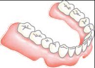 従来の治療法 (入れ歯安定剤・入れ歯の作り直し)