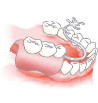 従来の治療法(部分入れ歯)