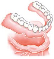 従来の治療法(総入れ歯)